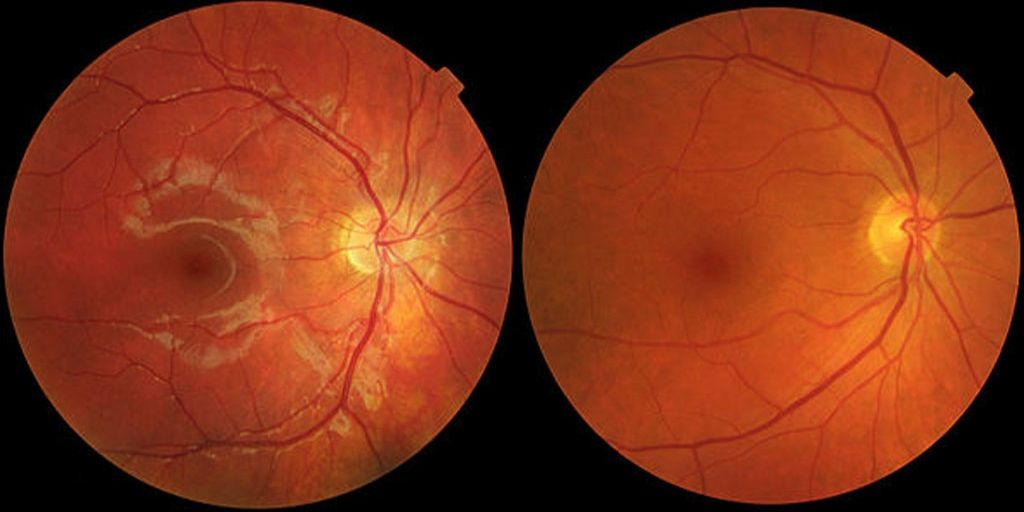 centre-for-sight-africa-age-related-macular-degeneration